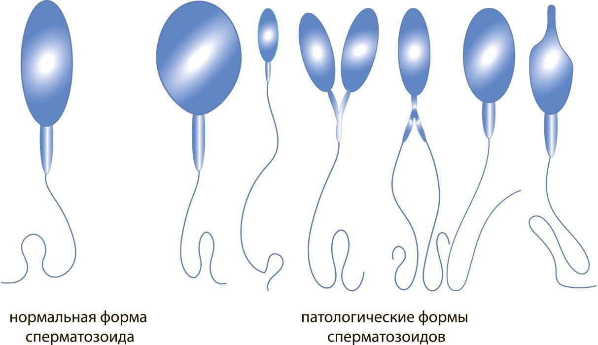 тератозооспермия лечение